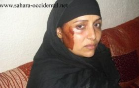 fatma-amidan-saharaui-golpeada