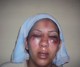 Mujer saharahui herida en una manifestacion