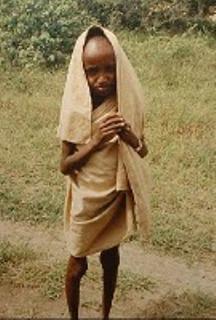 hambruna-en-somalia