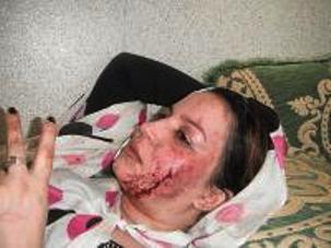 La activista saharaui Sultana Jaya, herida en las manifestaciones de protesta en el Aaiún