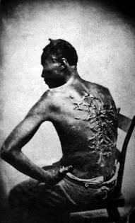 Cicatrices de una víctima del castigo del látigo en Batong Rouge (Louisiana) en 1853.
