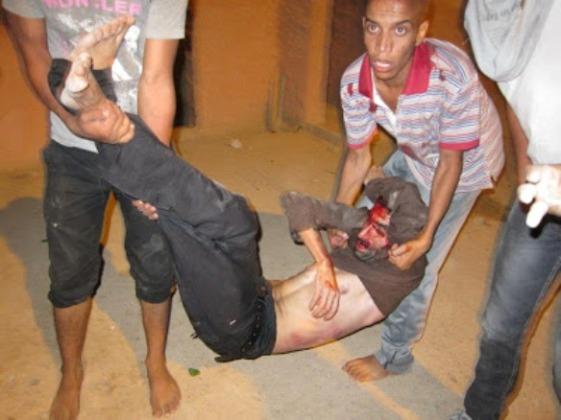 brutal-represion-contra-el-pueblo-saharauis1