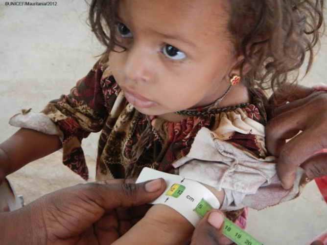 Desnutrición infantil en España (Foto UNICEF)
