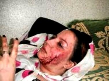 La activista saharaui Sultana Jaya (Khaya), herida en las manifestaciones de protesta en el Aaiún en 2011, en las que le arrancaron un ojo.